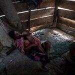 Guatemala, el peor país en términos de desnutrición en Latinoamérica
